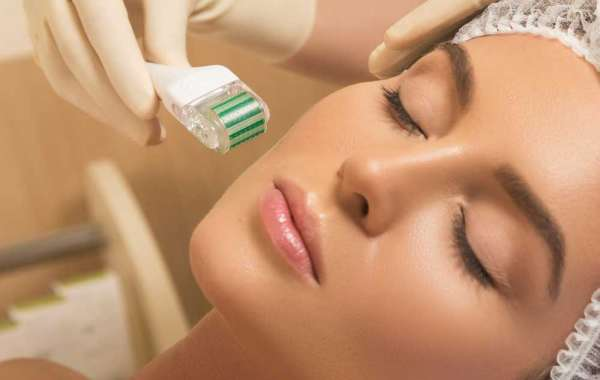 How Microneedling Can Benefit One's Skin?