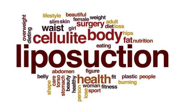 What Is Tampa liposuction and Why It Is Popular?