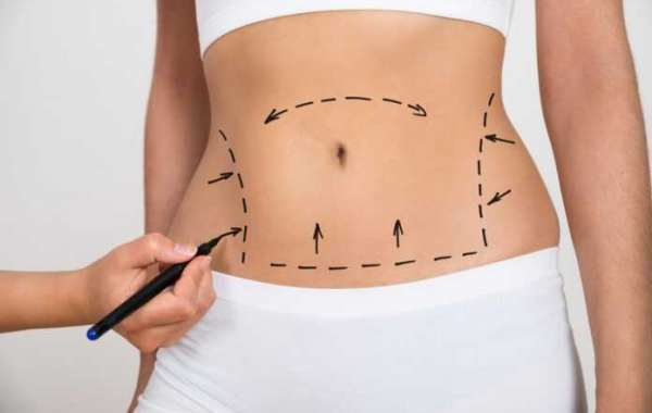 Know what is Orlando liposuction about